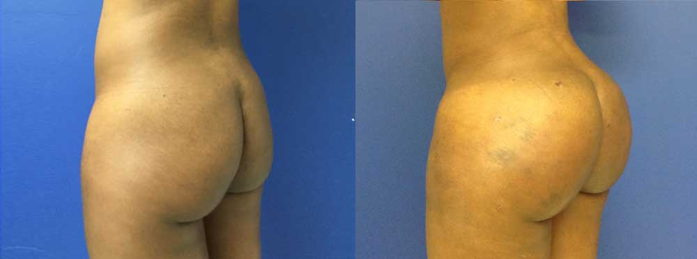 BBL (fat transfer) before and after
