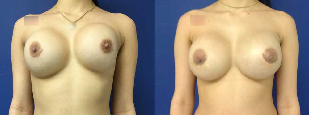 Breast Augmentation Revision before and after