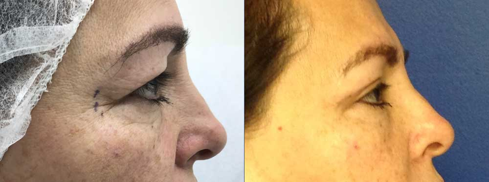 Blepharoplasty Upper before and after photos